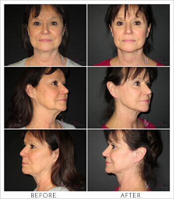 Neck-Lift-Gallery-thumbs