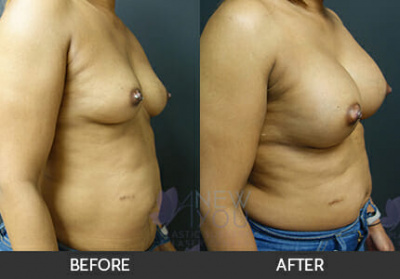 Breast Augmentation Gallery