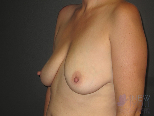 Breast Augmentation with Lift (Mastopexy) Before - Chicago, IL