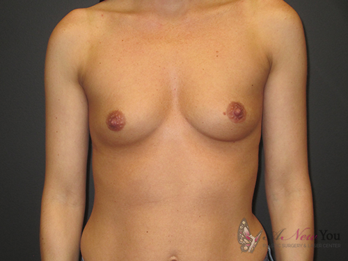 Breast Augmentation Before - Chicago, IL