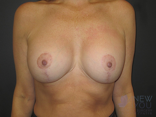 Breast Augmentation After - Chicago, IL