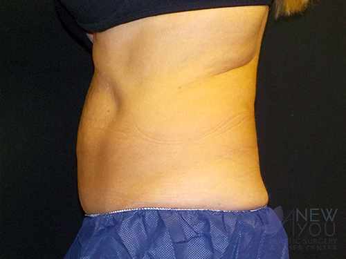 CoolSculpting® Before - Chicago, IL