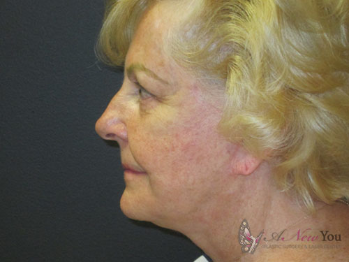 Female Facelift After - Chicago, IL