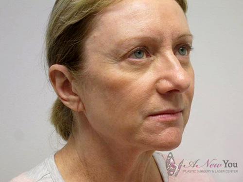 Female Facelift Before - Chicago, IL